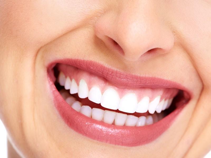 Clareamento Dental Preco Arquitetas Do Sorriso