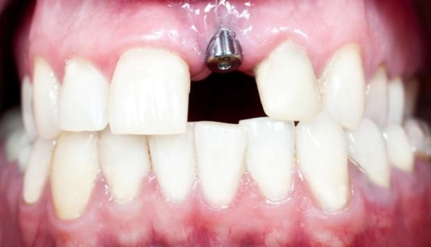 Implante Dentario Preco Por Dente Arquitetas Do Sorriso