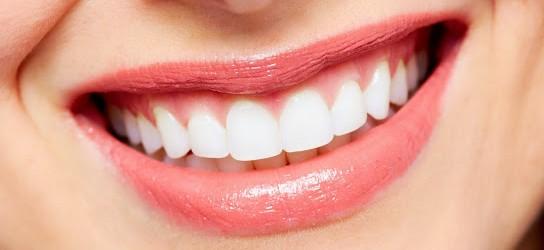 Preco Clareamento Dental Arquitetas Do Sorriso