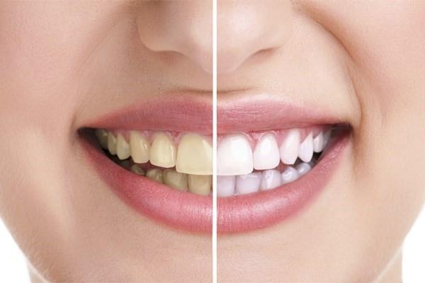 Quanto Custa Um Clareamento Dental Arquitetas Do Sorriso